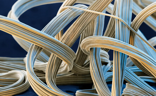 elastic_fibers